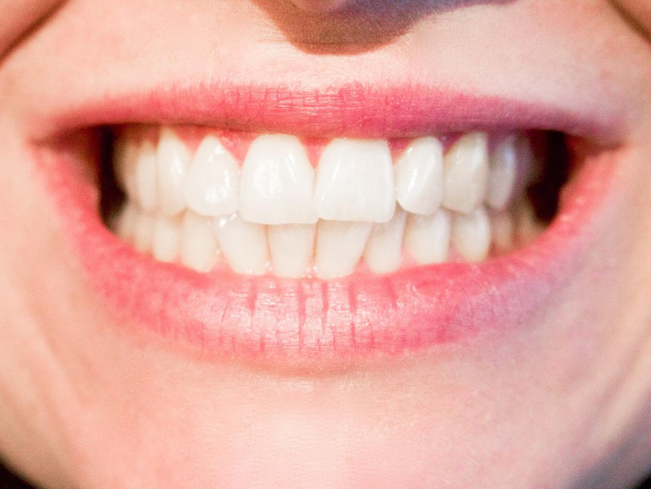 Отбеливание зубов Симферополь